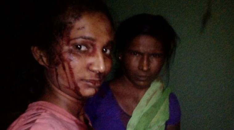Maharashtra: Trying to save goat, woman fights off tiger with a stick