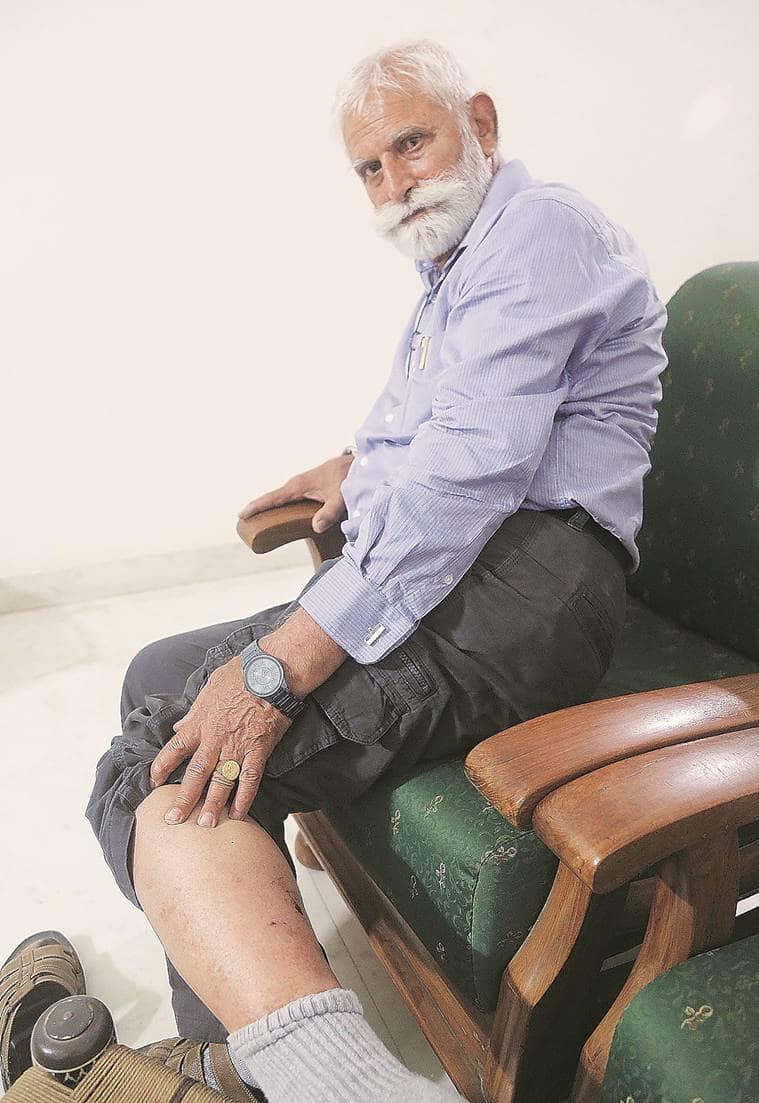 Chandigarh stray dog menace: 74-year-old NRI attacked