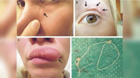 Woman captures moving 'bump' on face with the help of selfies, turns out to be a parasite