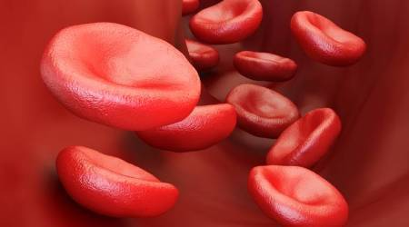 World Sickle cell day, what is sickle cell disease, sickle cell disorder symptoms, sickle cell disorder treatment, sickle cell disorder, what happens in sickle cell disease, sickle cell cure, indian express, indian express news