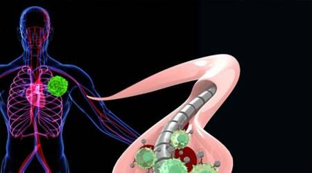 Magnetised wire can detect cancer early