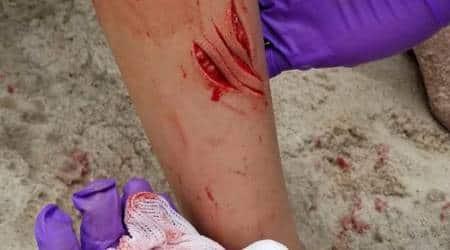 Two rare shark attacks reported along New York's Fire Islandbeaches