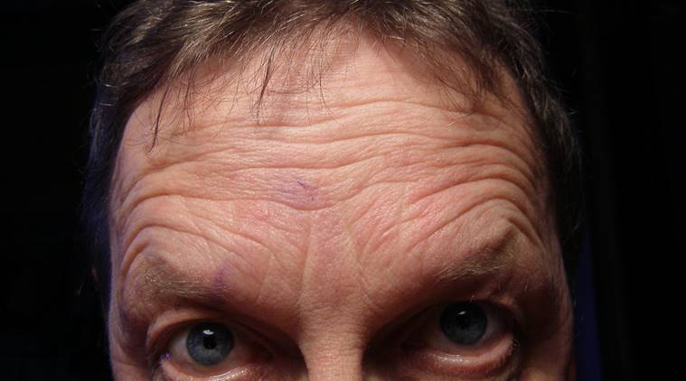Deep forehead wrinkles may signal heart disease risk