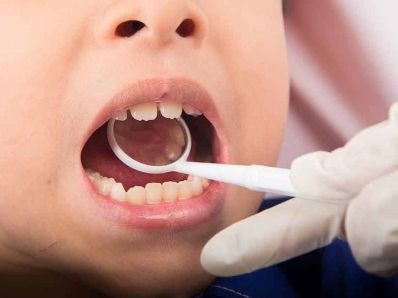 kids teeth, dental issues, kids dentist