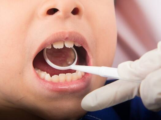 Make the dentist your child's best friend to catch problemsearly