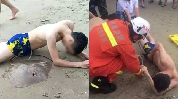 stingray attack, stingray stung penis, stingray stung man genitals, bizarre news, odd news, china news, viral news, indian express