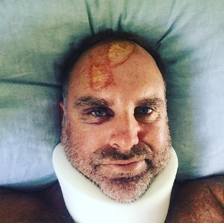 Matthew Hayden injury