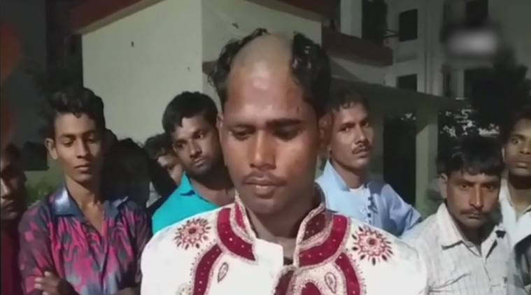 Lucknow Groom Tonsured, Lucknow Groom head Tonsured, Lucknow Groom Tonsured for dowry, dowry demands, lucknow UP dowry rate