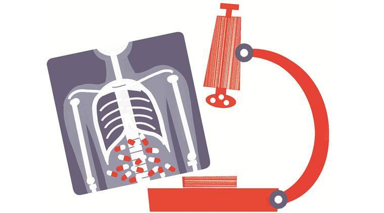 tuberculosis, TB patients in india, TB cases, TB deaths, TB symptoms, TB medicine, Indian express