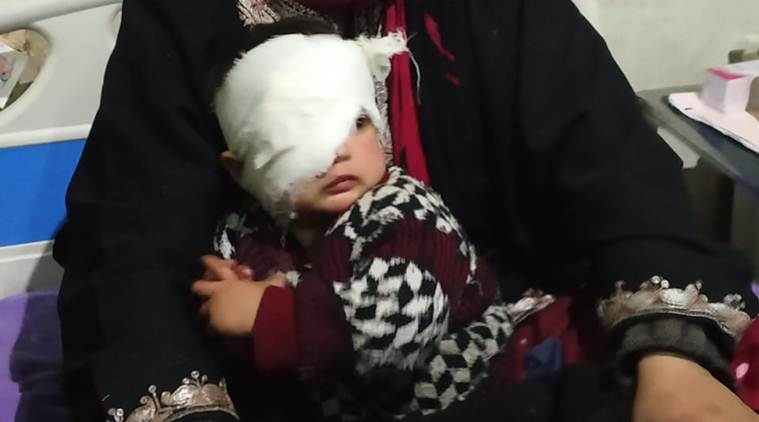 20 month girl with pellet injury, pellet injury in girls eye, jammu and kashmir violence, baby injured, girl with pellet injury, j&k violence, indian express