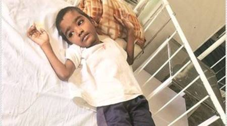 Mumbai: Five-year-old diagnosed with advanced spinal tuberculosis, loses eightvertebrae