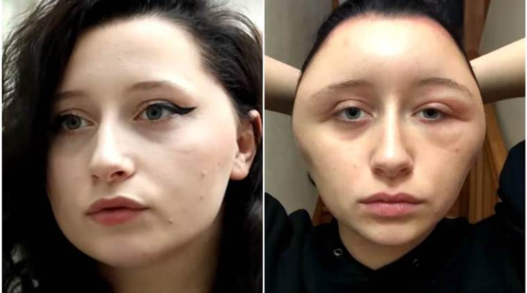 French Woman S Head Transforms Into Light Bulb After