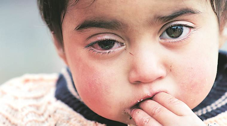 J-K: Hiba Nisar set for second operation to take out pellet, her parents cling to hope