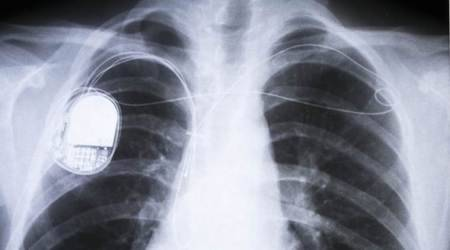 Energy, Universe, Technology, Medical devices, Artificial cardiac pacemaker, Biomedical engineering, Cardiac electrophysiology, Cybernetics, Neuroprosthetics, Heart, PAVE, Solar cell, Proceedings of the National Academy of Sciences