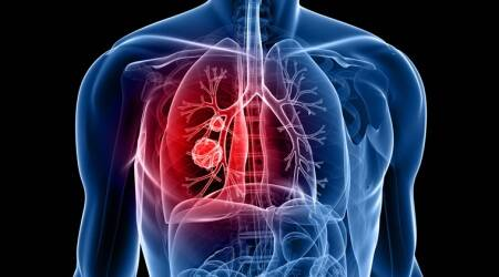 cancer, lung cancer, early stage lung cancer, biosensor, lungs, graphene biosensor, cancer diagnosis, health, health care challenge, tech news, indian express news