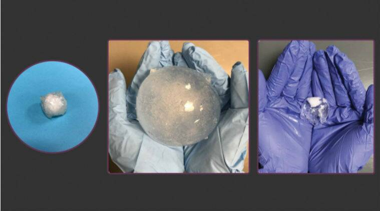 cancer detecting pill, ingestible pill detects cancer, MIT, Massachusetts Institute of Technology, smart pill, stomach cancer, ulcers, inflatable pill to detect cancer, hydrogel pill