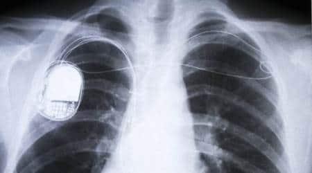 heart, pacemaker, defibrillators, heart implantable device, heart sensors, heart monitoring