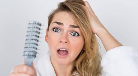 hair loss, hair fall, hair care, indian express, indian express news