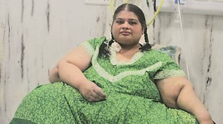 From 300 kg to 86 kg: Pune woman undergoes 2 weight loss surgeries