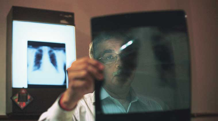 Resident doctors face two-fold risk of contracting TB: study   India