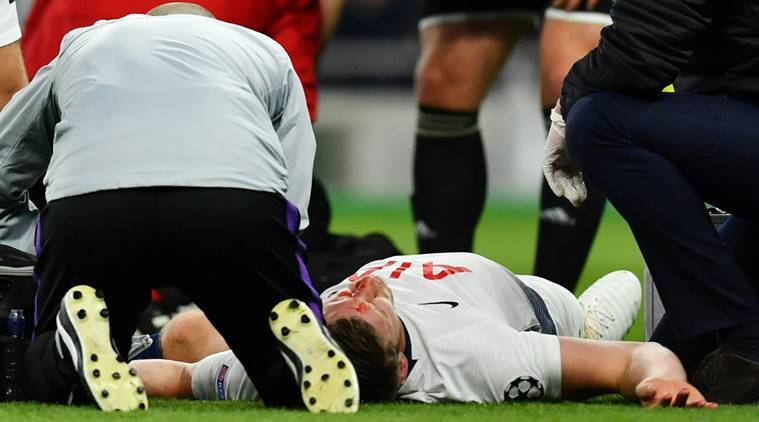 Tottenham's Jan Vertonghen receives medical attention after sustaining an injury