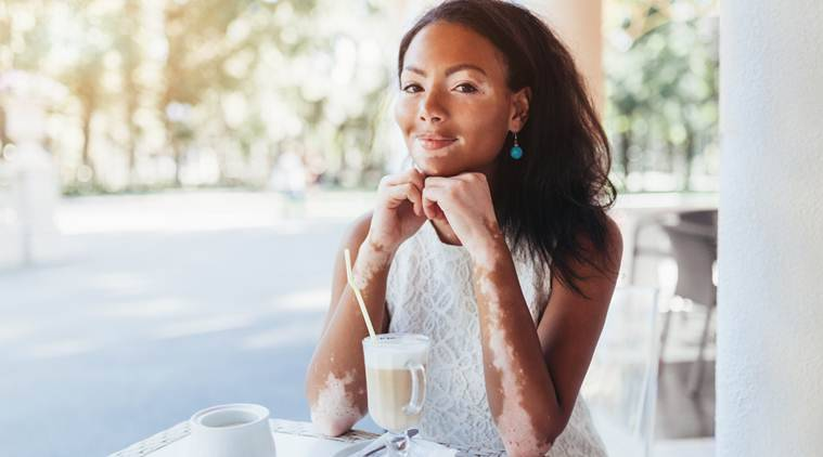 World Vitiligo Day 2019 Know The Causes Symptoms And Treatment Lifestyle News The Indian Express