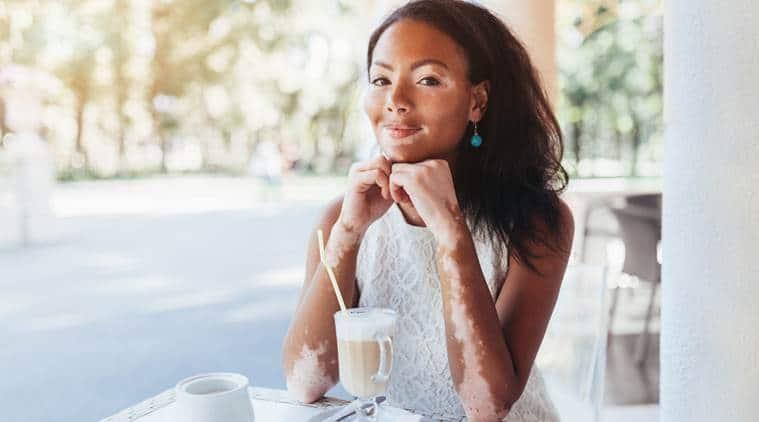 world vitiligo day, world vitiligo day 2019, vitiligo symptoms, indian express, indian express news