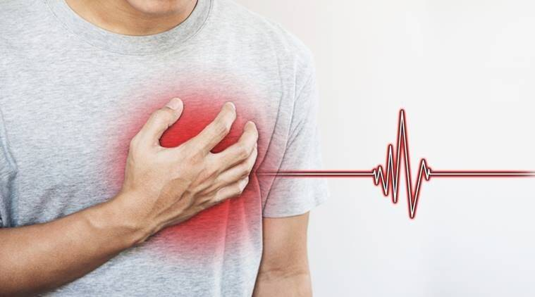 heart attack, heart attack symptoms, heart attack triggers, indian express, indian express news