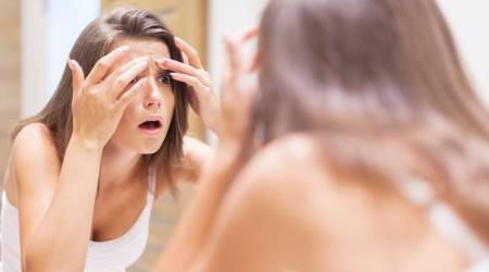 acne, acne trouble, home remedies for acne, monsoon skincare, acne in monsoon, indian express