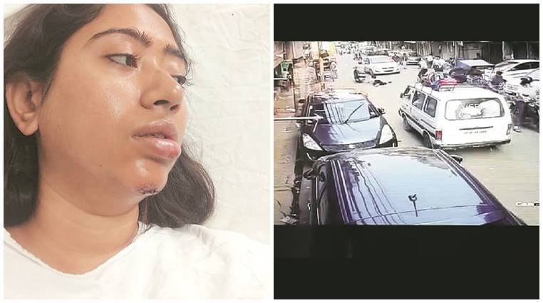 Delhi: Woman dragged out of moving auto by snatchers, another almost run over