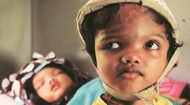 Odisha conjoined twins, Odisha conjoined twins leave AIIMS, conjoined twins jagga balia, cuttack hospital, express big picture, india news, indian express