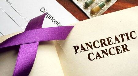 Pancreatic cancer, colorectal cancer, diabates, obesity, smoking, indianexpress.com, indianexpress, new study, global death rates of cancer, blood glucose levels, UEG Week 2019 Barcelona, colorectal cancer screening programmes
