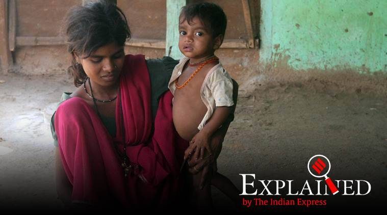 Half of India's children suffer from malnutrition: UNICEF
