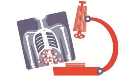 TB patients, tuberculosis notification, Coronavirus lockdown, Pune news, Indian express news
