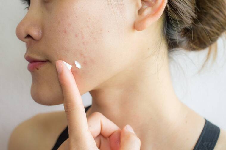 Bakuchiol, Bakuchiol benefits, what is Bakuchiol?, Bakuchiol or retinol, Bakuchiol retinol alternative, skincare, skincare benefits, lifestyle, indian express