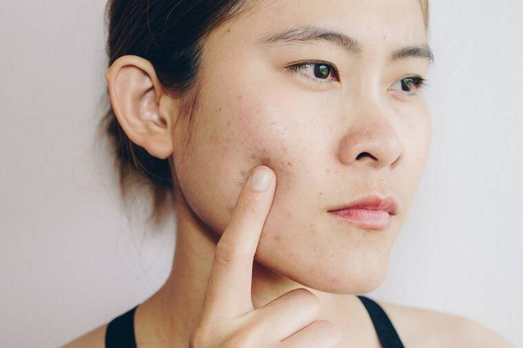 pimple patches, what are pimple patches, pimple patches helps, pimple patches techniques, acne pimple patches, pimples treatment, skincare, skincare tips