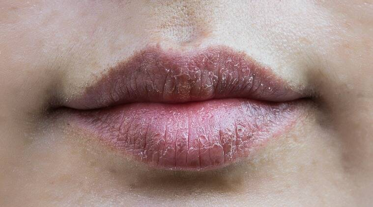 how to prevent dark lips, why do i have dark lips, how to make lips pink, skincare, skincare tips, lifestyle, indian express