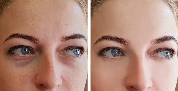 how to de puff face, puff eyes remedies, puffy face remedies, home made remedies for puffy face, living, indian express, lifestyle