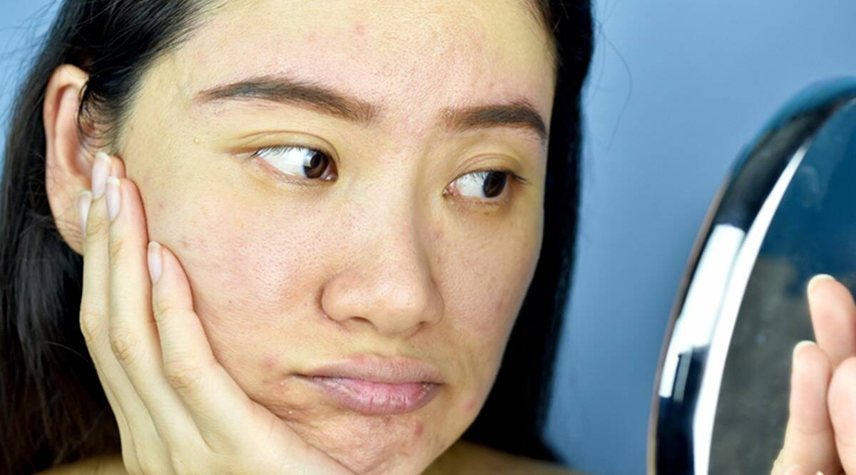 Combat dull skin during winters with these tips | Lifestyle News,The Indian  Express
