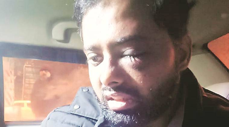 Jamia student says lost sight in one eye