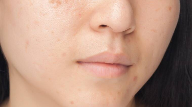 products to not use for oily skin, things to leave for oily skin, oily skin care routine. skincare, skincare tips, lifestyle, indian express