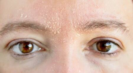 makeup on dry skin, dry skin tips, dry skin skincare tips, winter skincare tips, winter skicnare routine, indian express, lifestyle