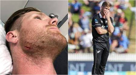 'Don't reverse sweep up into your own face': Neesham after injuring himself