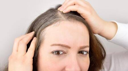white hair, what causes white hair, relation between white hair and stress, stress indian express lifestyle