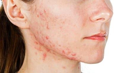acne prone skincare tips holi, holi acne skincare, acne skincare tips, holi skincare tips,skincare tips, skincare this holi, home remedies for acne prone skin, indian express news
