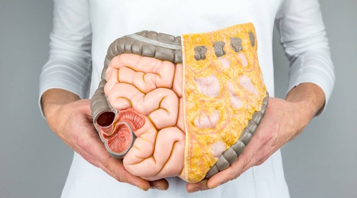 what foods are bad for your colon