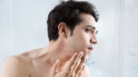 Acne breakouts, how to avoid acne, indianexpress.com, skincare, skincare for men, what causes acne, indianexpress.