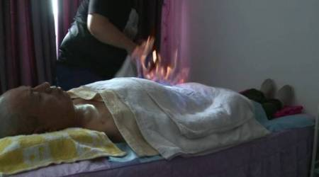 fire therapy, chinese medical therapy