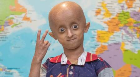 children living with progeria, lockdown experiences, messages of hope from children living with progeria, parenting, indian express, indian express news
