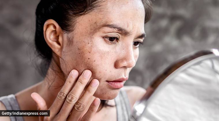 skincare in summers, sunburn in summers, how to treat sunburn, skincare, indian express, indian express news